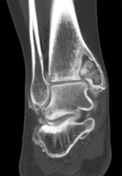Tibial Cyst Figure 2